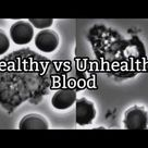 Comparing Healthy and Unhealthy Blood in Live Blood Analysis