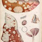 Liver neoplasms. Plate IV. Pathological anatomy. Carswell, Robert, Sir, 1793-1857. London, 1838.