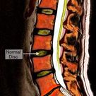 Color MRI Medical Image showing Disc Degeneration at the lowest Spinal Disc of the Lumbar Spine (Low
