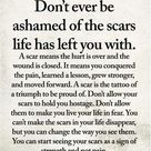 Don't ever be ashamed of the scars life has left you with.