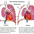 Image result for becomes a true cavity in a pneumothorax