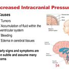 Intracranial Hypertension Pediatrics