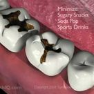 Tooth Decay (Dental Caries)