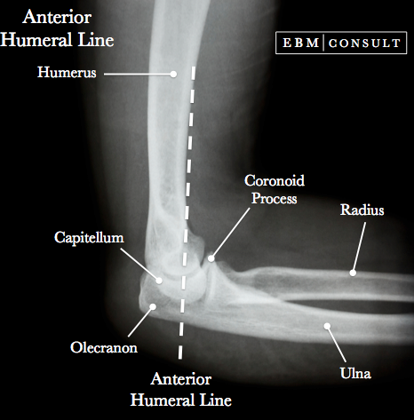 Anterior Humeral Line.