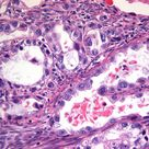 cervix clear cell carcinoma = hobnailing and high grade, related to in utero DES; good prognosis