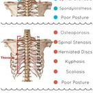 What's causing your back pain? Learn about the many lower, middle, & upper back conditions that