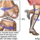 Soccer Performance: ACL Injury Prevention in Youth Soccer