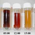 Urinalysis samples showing evidence of Paroxysmal Nocturnal Hemoglobinuria (PNH)