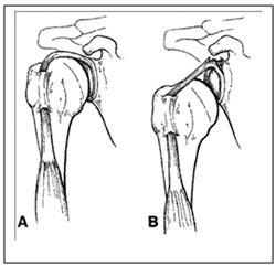 Managing Expectations When Recovering from a Labral Repair