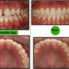This 20 years old fellow came and asked to do two porcelain teeth for him(upper central incisors). H