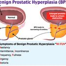 Benign Prostatic Hyperplasia (BPH) Rosh Review