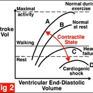 Cardiovascular physiology tutorial