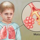 Cystic Fibrosis:   Young boy with cystic fibrosis. Close-up of how mucus blocks the airways in his l