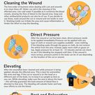 Here are tips on first aid for wounds and cuts