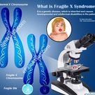 What is Fragile X Syndrome?
