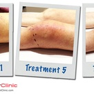 Manual lymphatic drainage results post total knee replacement surgery.