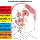 Tension headaches usually affect both sides of the head and last from thirty minutes to several days