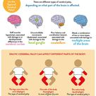 Understanding Cerebral Palsy Infographic