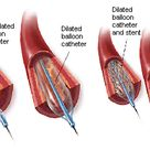 Angioplasty with and without Stenting