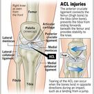 What is #AnteriorCruciateLigament or ACL.