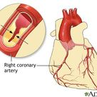 Nursing Interventions: Coronary Artery Disease Keep nitroglycerin available for immediate use.
