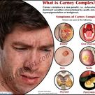 What is Carney Complex?