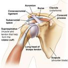 Rotator cuff tears are one of the most common shoulder injuries. Avoid this injury with these specif