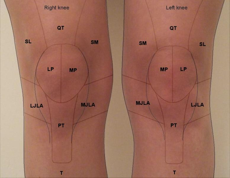LJLA - lateral joint line area SL - superior lateral MJLA - medial joint line area