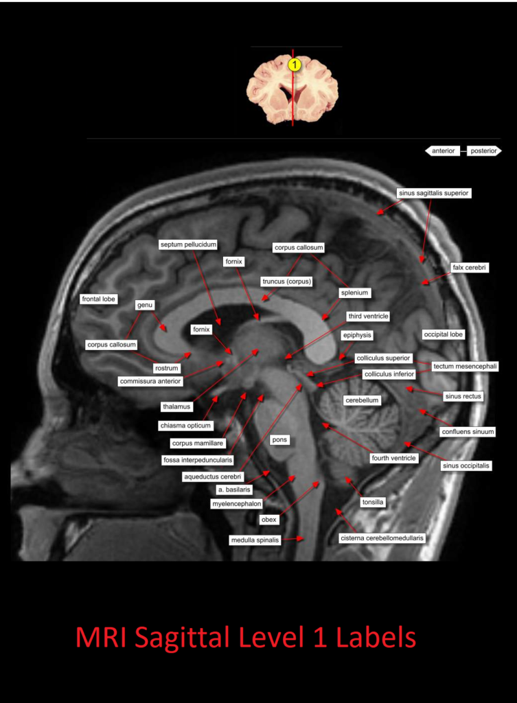 MRI Sagittal Anatomy of Brain Level 1 - NCLEX Quiz