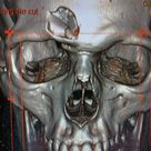 CT scan reconstruction: hockey puck + skull =  Ouch.