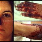 Cold Agglutinin Disease: Ischemic Changes, Face, Hand and Foot Description: Severe ischemic changes,