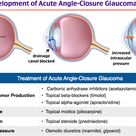 Development and Treatment of Acute Angle-Closure Glaucoma Rosh Review