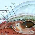 The angles formed by the cornea and the iris in the front part of the eye (anterior chamber)
