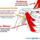neck scalenes muscles and or chest pectoralis minor muscles