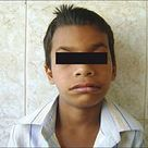 Williams syndrome (WS) - also known as Williams Beuren syndrome