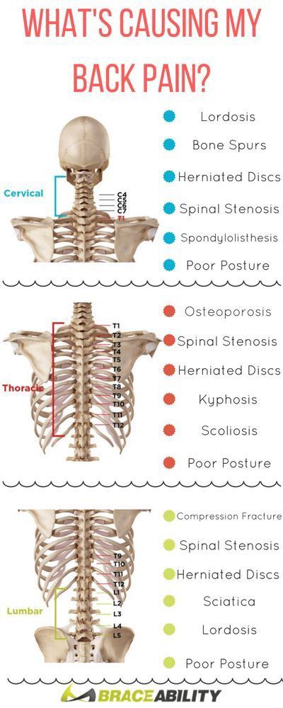 What's causing your back pain.