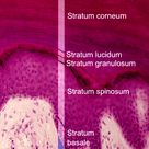 images layers skin | layer consists of layers of dead cells corneocytes containing keratin
