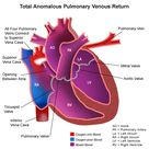 Total anomalous pulmonary venous return (TAPVR) is a congenital (present at birth) heart defect.