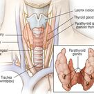 Follicular Thyroid Cancer | Thyroid Cancer Guide: Causes, Symptoms and Treatment Options