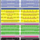 ECG rhythms are used to evaluate normal or abnormal cardiac conditions