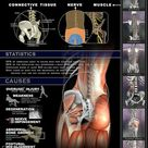 Lower Back Pain Infographic: