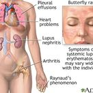 Systemic lupus erythematosue Systemic lupus erythematosus (SLE) is an autoimmune disease in which th