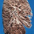 This is a lung with Pulmonary Fibrosis. It is turning to a stone like substance. This would likely (