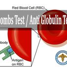 Coombs Test / Anti Globulin Test