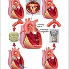 Trans catheter aortic valve implantation for otherwise inoperable patients with severe stenosis