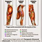 Here is a potential of your hamstring pains - Trigger points.