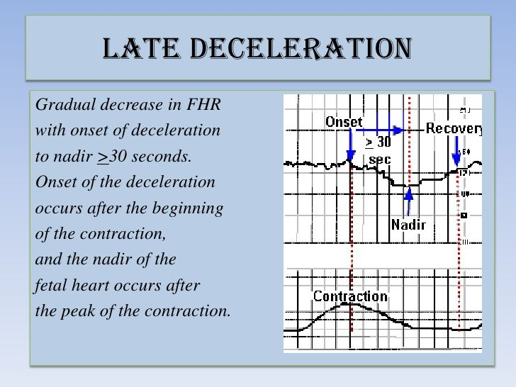 Late deceleration labor and delivery.