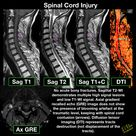 Spinal cord contusion in trauma case