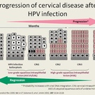 The progression of HPV virus to invasive cervical cancer.