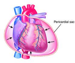 Cardiac tamponade occurs when the heart is squeezed by fluid that collects inside the sac that surro